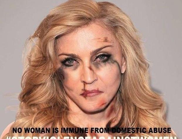 Розбите обличчя Мадонни шокувало шанувальників (ФОТО)