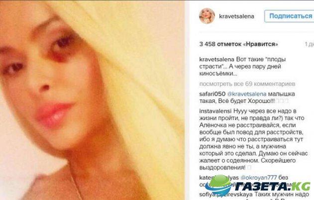 vidnuyu-krasotku-alenu-kravec-zhestoko-izbil-obezumevshiy-muzh-na-glazah-docheri_2