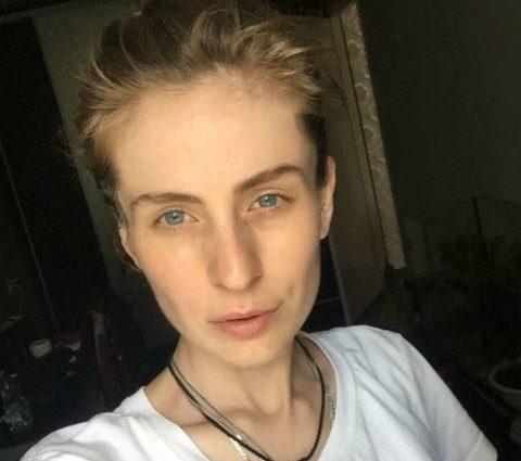 Відома українська модель потрапила після ДТП в лікарню зі зламаним хребтом